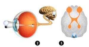 la-ceguera-occipital-p-05-2016-3